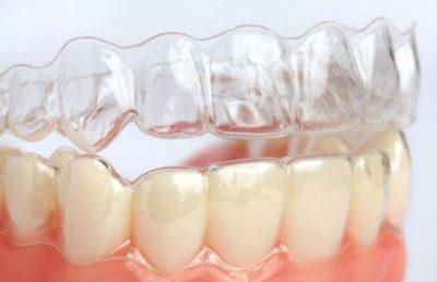 Aparelho dental Invisalign no Itaim